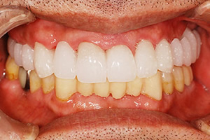 「仮歯」によるイメージのすり合わせ