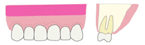 歯茎の縫合